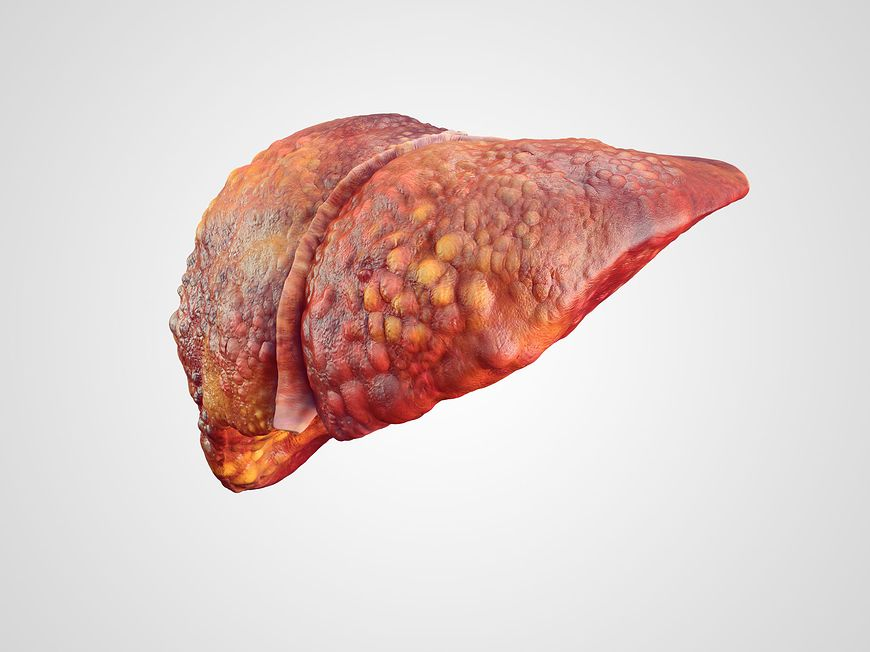 Wątroba z objawami nowotworowymi