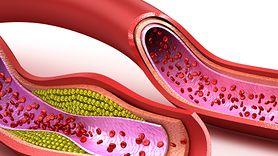 Produkty, które czyszczą tętnice ze złogów cholesterolu (WIDEO)