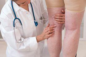 Opuchlizna - przyczyny powstawania, obrzęki nóg, zapobieganie i leczenie