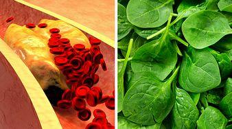 5 produktów, które zmniejszają ryzyko powstania złogów w twoich tętnicach