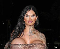 Ma największy biust w Wielkiej Brytanii. Powiększała go kilkakrotnie
