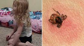 Wstrząsające! Dziecko zostało sparaliżowane po ugryzieniu przez kleszcza