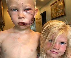 6-latek uratował siostrę. Teraz wygląda zupełnie inaczej
