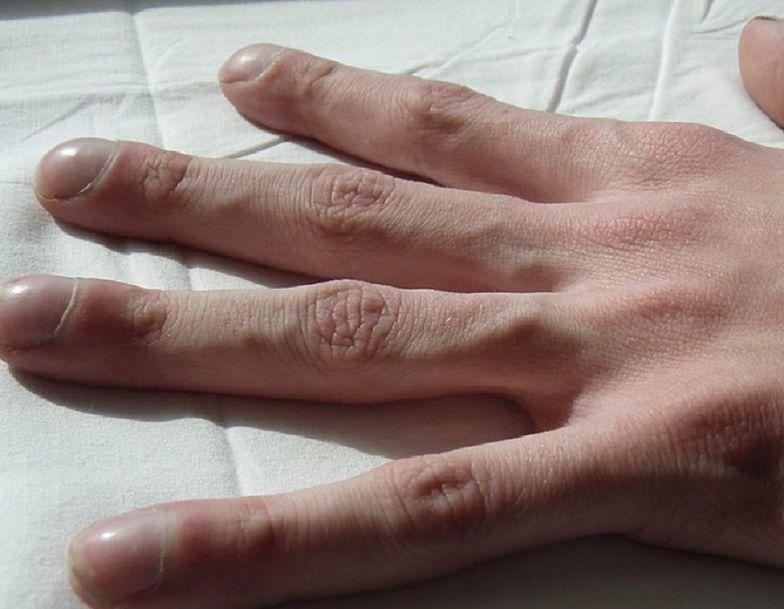 Ten znak na dłoniach to dowód, że rak jest zaawansowany
