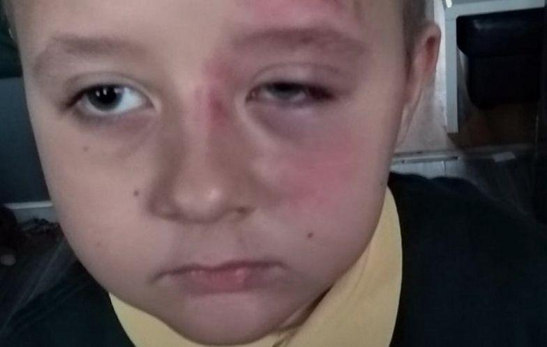 7-letni Gabryś pobity w brytyjskiej szkole. Wstrząsający powód