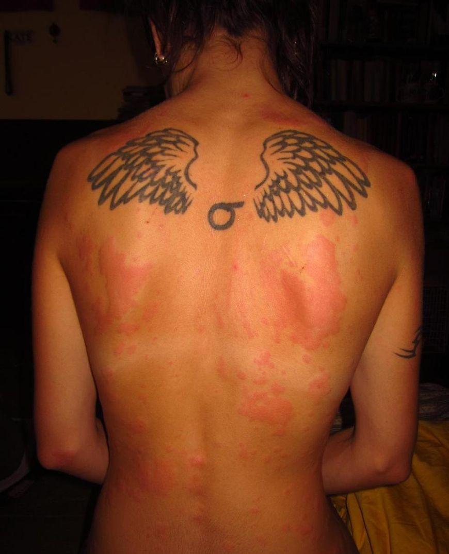 Czerwone plamy na skórze mogą być objawem wielu schorzeń