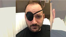 Uszkodził tętnicę podczas przeciągania się. Dostał udaru mózgu