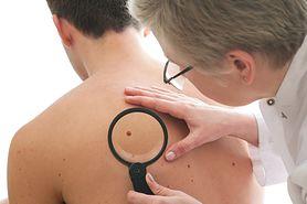 Objawy i rodzaje czerniaka - jak rozpoznać nowotwór skóry?