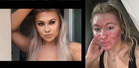 Spędza 2 godziny robiąc makijaż. Boi się, że ktoś zobaczy jej twarz