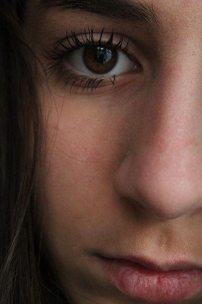 Żółte plamy na powiekach