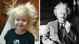 Dziecko z włosami niczym Albert Einstein – żart rodziców czy nietypowa choroba?