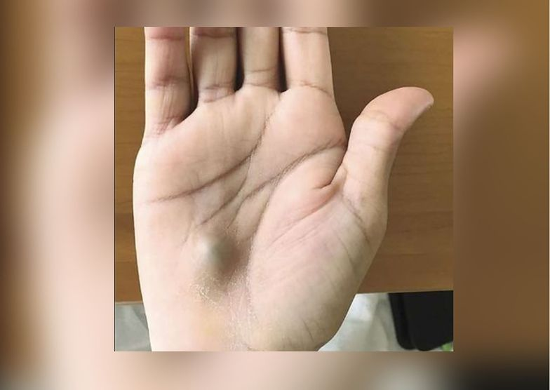Guzek na ręce był objawem tętniaka