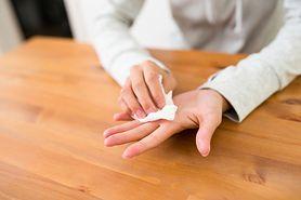 Odciski na dłoniach – jak sobie z nimi radzić?