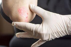 Łuszczycowe zapalenie stawów. Wszystko co musisz wiedzieć o tej chorobie