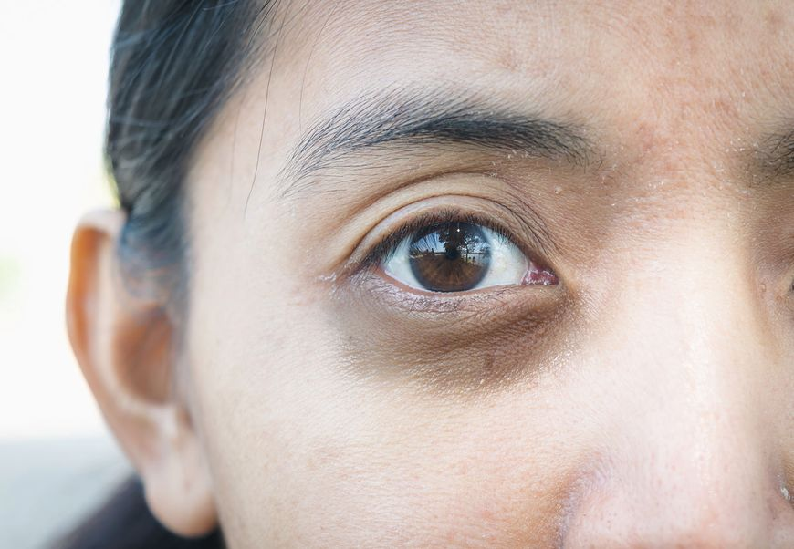 Sine znaki pod oczami kobiety