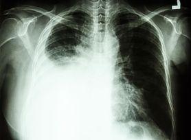 Co dzieje się z płucami u ozdrowieńców z COVID-19? Holendrzy mają pozytywne wiadomości