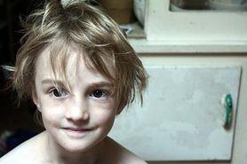 Anemia u dzieci - przyczyny, leczenie