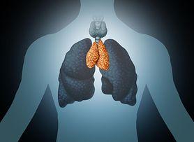 Nowotwór złośliwy grasicy - przyczyny, objawy, leczenie