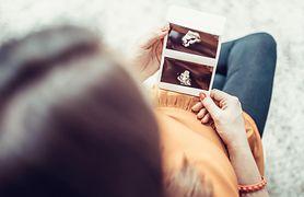 USG w ciąży - opis badania, ocena rozwoju ciąży