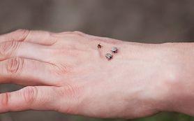 Kleszcze - gatunki, rodzaje, co je wabi, kogo atakują najczęściej, jak usunąć kleszcza