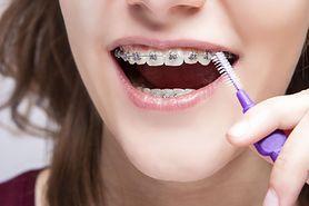 Aparat ortodontyczny - rodzaje, wskazania, przeciwwskazania i cena