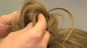 Blondynki częściej chorują na czerniaka