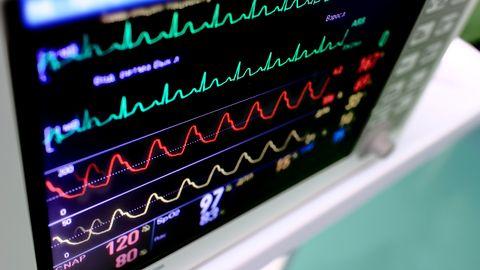 Rozruszniki serca z poważnymi lukami w oprogramowaniu. Wyniki testów są przerażające