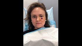 Myślała, że pod okiem zrobił jej się pryszcz. To był rak skóry