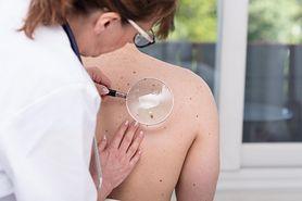 Lek, który może zwiększać ryzyko raka skóry. Nowe badania