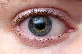 Syndrom oka biurowego