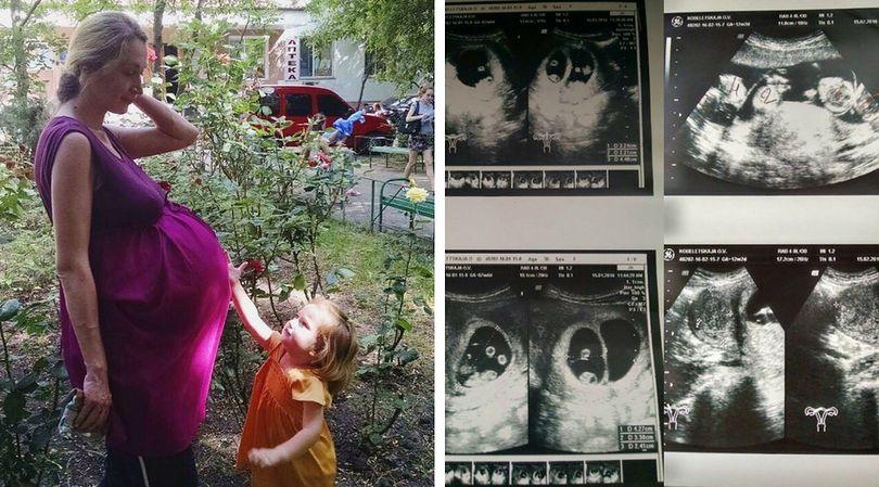 Ciąża Oksany to pierwszy taki przypadek na Ukrainie