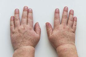 Szkarlatyna (płonica) - przyczyny, objawy, leczenie