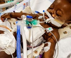 Cud w szpitalu. Dziecko przeżyło niemożliwe