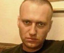 Lekarze zbadali Nawalnego. Co mu dolega?