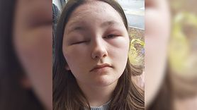 Straciła wzrok na kilka dni. Skutki uboczne farbowania włosów (WIDEO)