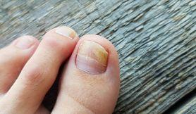 Rekonstrukcja paznokcia - wskazania, przebieg zabiegu, pielęgnacja