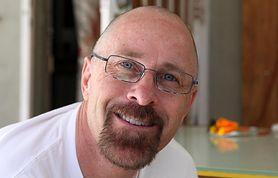 Łysiejesz? Możesz być zagrożony ryzykiem wystąpienia raka prostaty