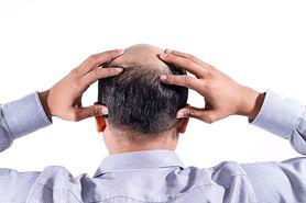 Skuteczny sposób na łysienie. Nowe badania
