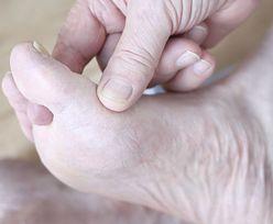 Kształt stopy może zdradzić problemy ze zdrowiem. Nie ignoruj