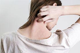 Alergiczne zapalenie skóry