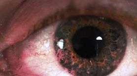 Objawy nowotworu oka. Mogą być mylące (WIDEO)