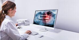 RTG zęba – charakterystyka, rodzaje, wskazania, przebieg, cena, przeciwwskazania