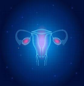 Zespół policystycznych jajników (PCOS) - przyczyny, objawy, leczenie
