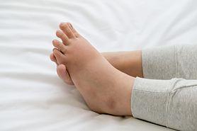 Słoniowacizna – przyczyny, objawy, ból, leczenie
