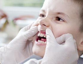 Choroby jamy ustnej - rodzaje, przyczyny, objawy, leczenie, profilaktyka