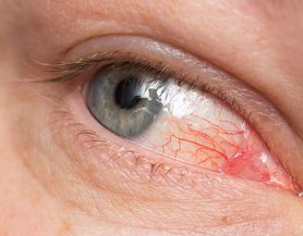 Jakie są najczęstsze przyczyny zapalenia rogówki?