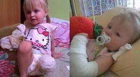 2-letnia Natalka straciła nóżkę przez pijanego kierowcę. Prośba o wsparcie