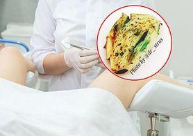 Kobieta wsadziła czosnek do pochwy. Dr Strus ostrzega przed konsekwencjami domowego leczenia infekcji intymnych