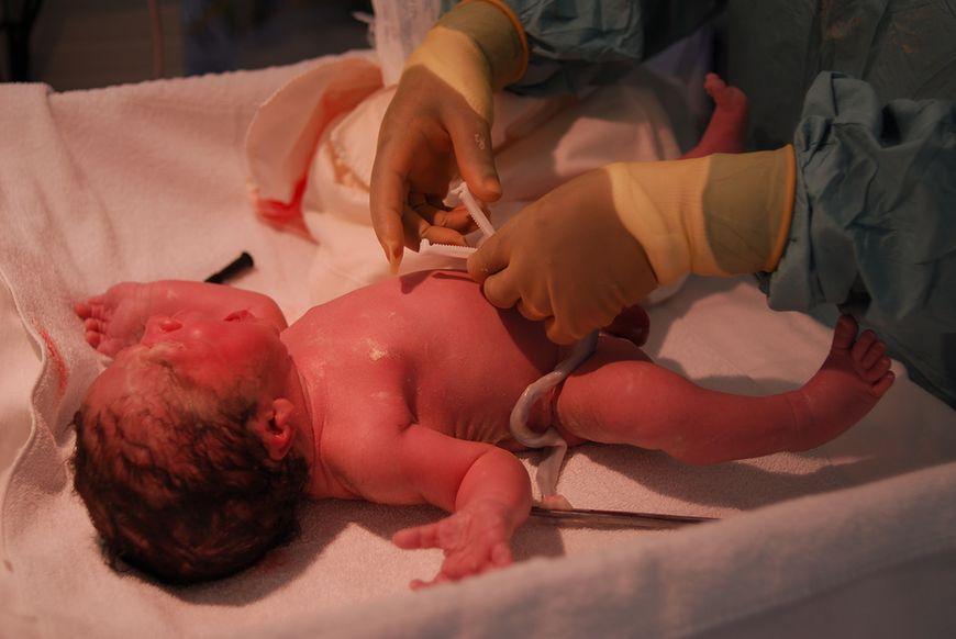 Badanie noworodka zaraz po porodzie