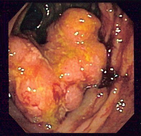 Rak okrężnicy w chorobie Leśniowskiego-Crohna